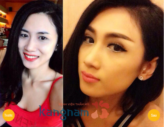 Hình ảnh trước và sau cắt mí mắt, bấm mí mắt Hàn Quốc880
