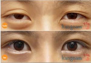 Hình ảnh trước và sau cắt mí mắt890