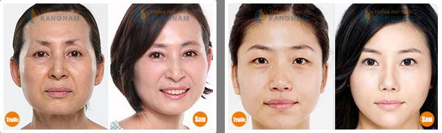 Tình trạng mắt nhiều da chùng khiến bạn già hơn so với tuổi