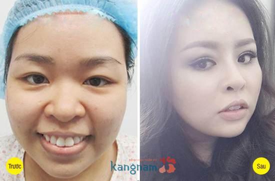 Hình ảnh trước và sau cắt mí mắt, bấm mí mắt Hàn Quốc11