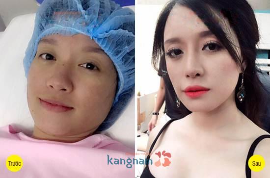 Hình ảnh trước và sau cắt mí mắt, bấm mí mắt Hàn Quốc7799
