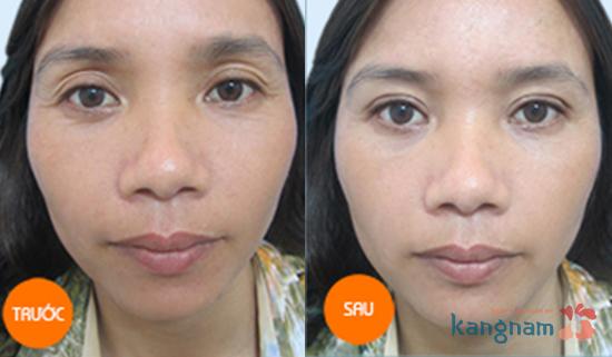 Hình ảnh trước và sau cắt mí mắt, bấm mí mắt Hàn Quốc7890