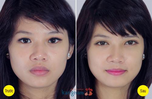 Hình ảnh trước và sau cắt mí mắt, bấm mí mắt Hàn Quốc778