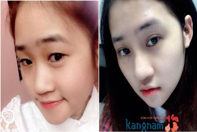 Hình ảnh trước và sau cắt mí mắt, bấm mí mắt Hàn Quốc889