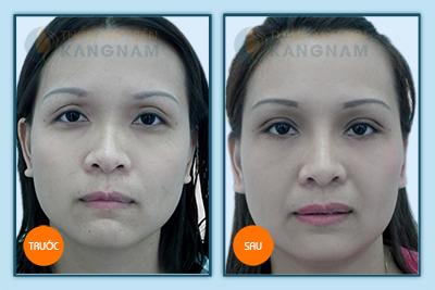 Giảm 20% - Cắt mí mắt Hàn Quốc loại bỏ da chùng, mỡ thừa, phục hồi nét xuân cho đôi mắt