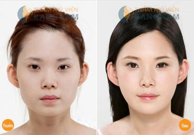 Cắt mí mắt Hàn Quốc cho đôi mắt đẹp lung linh 4