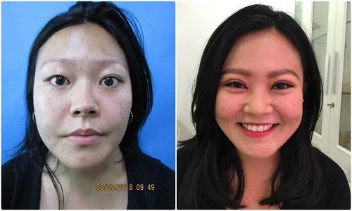 Hình ảnh cắt mí mắt tại BVTM Kangnam