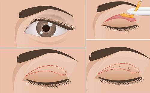 Hình ảnh cắt mí mắt tại kangnam