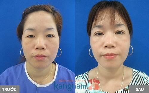 Hình ảnh trước và sau cắt mí mắt tại BVTM Kangnam