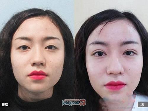 Hình ảnh sau khi cắt mí hàn quốc tại Kangnam