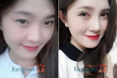 Hình ảnh trước và sau khi cắt mí mắt Hàn Quốc tại kangnam