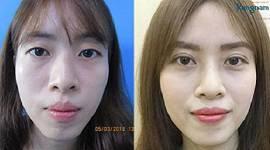 Hình ảnh trước và sau cắt mí mắt tại BVTM Kangnam của khách hàng