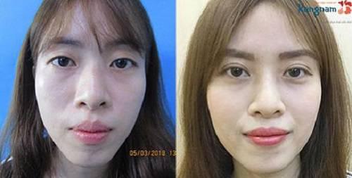 Hình ảnh sau khi cắt mí mắt tại Plasma BVTM Kangnam