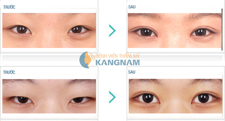 Kết quả khắc phục mắt xếch tại Kangnam