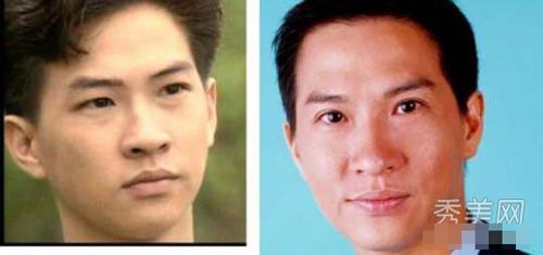 """7 mỹ nam Hoa ngữ từng """"tút tát"""" cho đôi mắt một mí 6"""