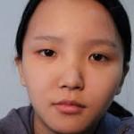 Có nên phẫu thuật cắt mí mắt bị sụp không?