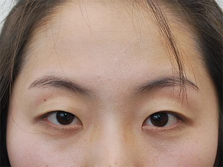Có cách làm mắt 2 mí tự nhiên không phẫu thuật không ạ?1