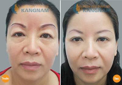Top 4 cách nâng mí mắt bị sụp đơn giản và hiệu quả nhất 5