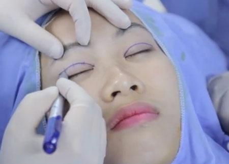 Cận cảnh quy trình cắt mí mắt an toàn công nghệ Hàn Quốc 4