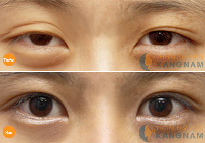 Cận cảnh quy trình cắt mí mắt an toàn công nghệ Hàn Quốc 8