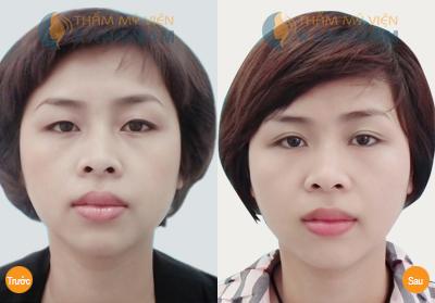 """Cắt mí mắt Hàn Quốc - Liệu pháp tuyệt vời giúp """"kéo"""" lại tuổi xuân 4"""
