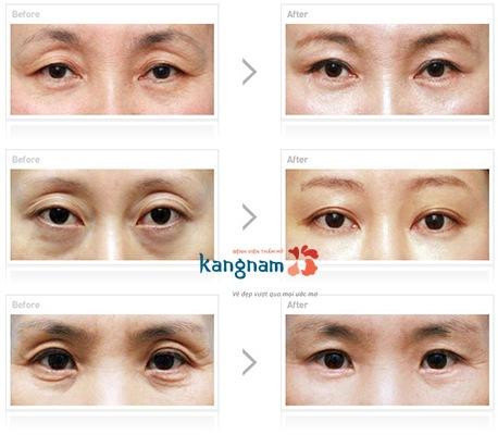 nguyên nhân và cách loại bỏ chùng da mắt 5