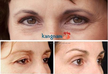 nguyên nhân và cách loại bỏ chùng da mắt 4