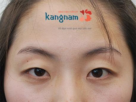 nguyên nhân và cách loại bỏ chùng da mắt 3