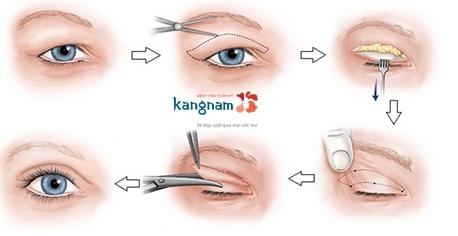 nguyên nhân và cách loại bỏ chùng da mắt 2