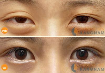 Phẫu thuật mắt 2 mí không đều trả lại đôi mắt bồ câu cân đối 1