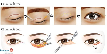 quy trình cắt mí mắt 3