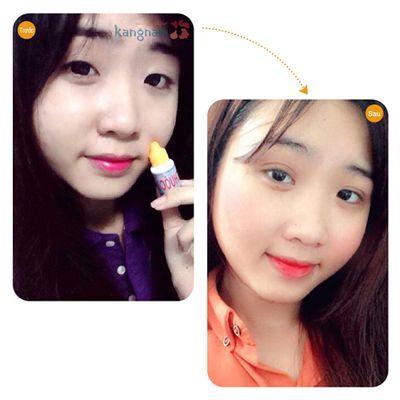 Bấm mí Hàn Quốc67 6