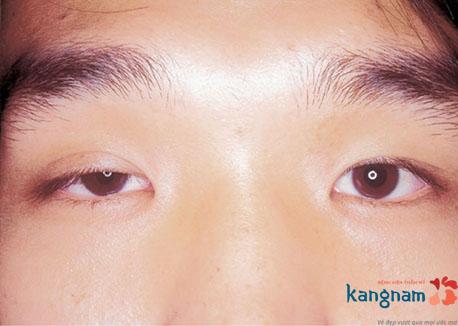 bị sụp mí mắt có chữa được không 3