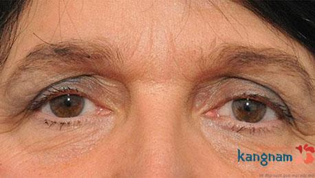 bị sụp mí mắt có chữa được không 4