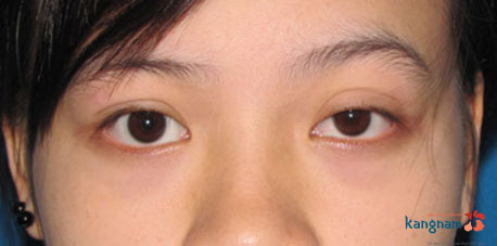bị sụp mí mắt có chữa được không 5