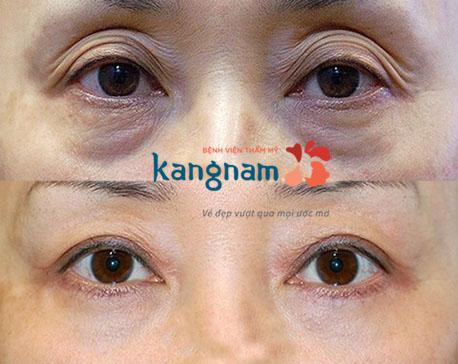 bị sụp mí mắt có chữa được không 6