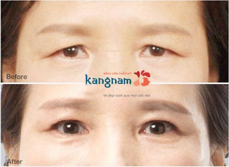 bị sụp mí mắt có chữa được không 8