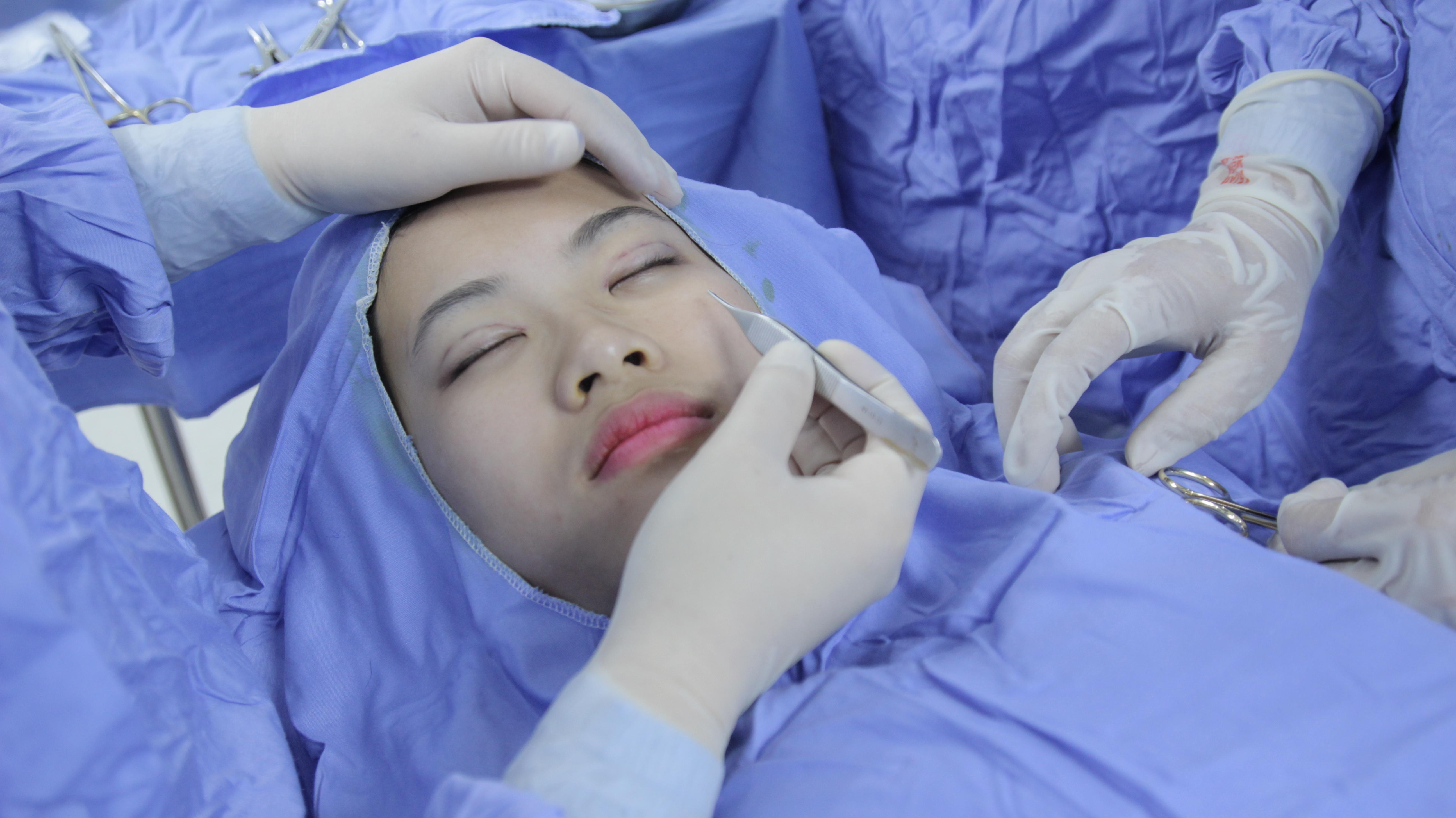 """Cơ hội miễn phí dịch vụ cắt mí mắt Hàn Quốc khi tham gia """"Hội yêu thích Thẩm mỹ Hàn Quốc"""" 4"""