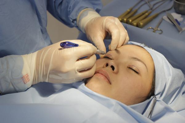 Thủ thuật đơn giản giúp xóa tan bọng mỡ mí mắt 4
