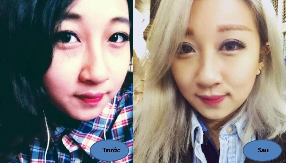 Nhấn mí hay bấm mí mắt Hàn Quốc giữ được bao lâu? 4