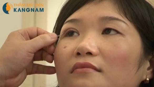 Nhấn mí mắt bao nhiêu tiền tại TMV Kangnam