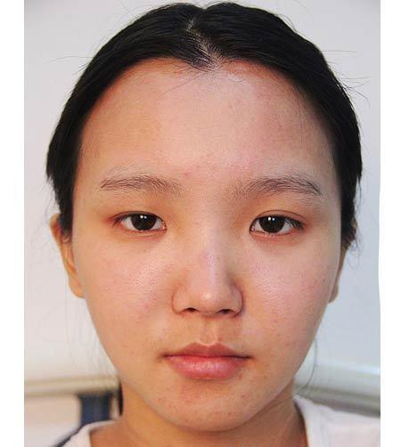 Nhấn mí mắt Hàn Quốc tại TMV Kangnam có duy trì vĩnh viễn không?1