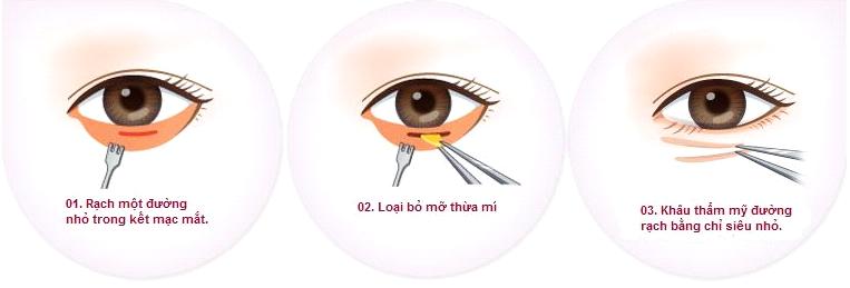 Phẫu thuật loại bỏ bọng mỡ mí mắt dưới có để lại sẹo không?87