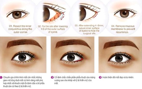 Phải làm thế nào để có đôi mắt đẹp toàn diện?2