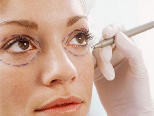 Phẫu thuật loại bỏ bọng mỡ mí mắt dưới có để lại sẹo không?1