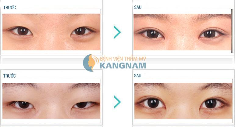 Thẩm mỹ mắt 2 mí Hàn Quốc hết bao nhiêu tiền?6767