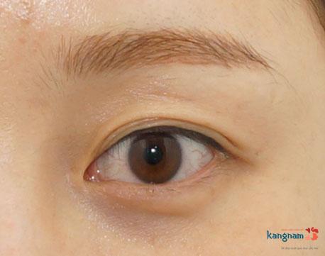 bọng mỡ mắt có nên phẫu thuật 1