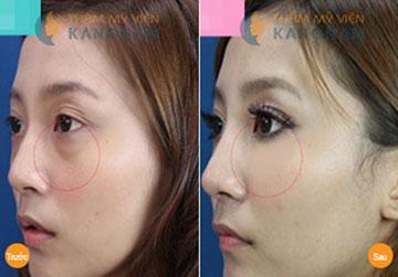 Lấy mỡ mí mắt (Cắt bọng mỡ mí mắt) dưới công nghệ Hàn Quốc4667