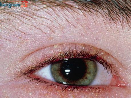 cách làm mắt 2 mí đẹp tự nhiên không cần phẫu thuật 5