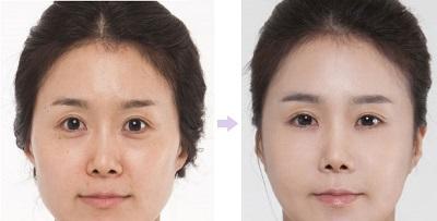 Cắt mí mắt dưới theo CN Hàn Quốc áp dụng cho những trường hợp nào?2